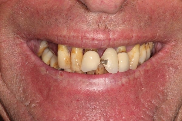Implant cases