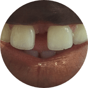 Gaps between teeth