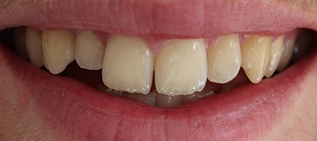Before Invisalign Treatment at Smile rooms In Wokingham
