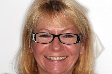 Before Smile Makeover Treatment Wokingham Smiles