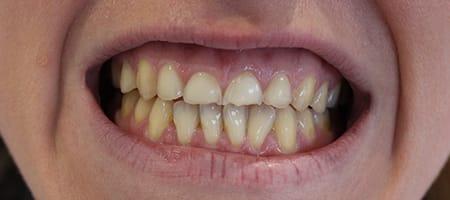 Before veneers Treatment Smile Rooms